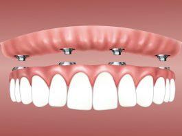 Zahnimplantate: Wie sie funktionieren und woraus sie bestehen