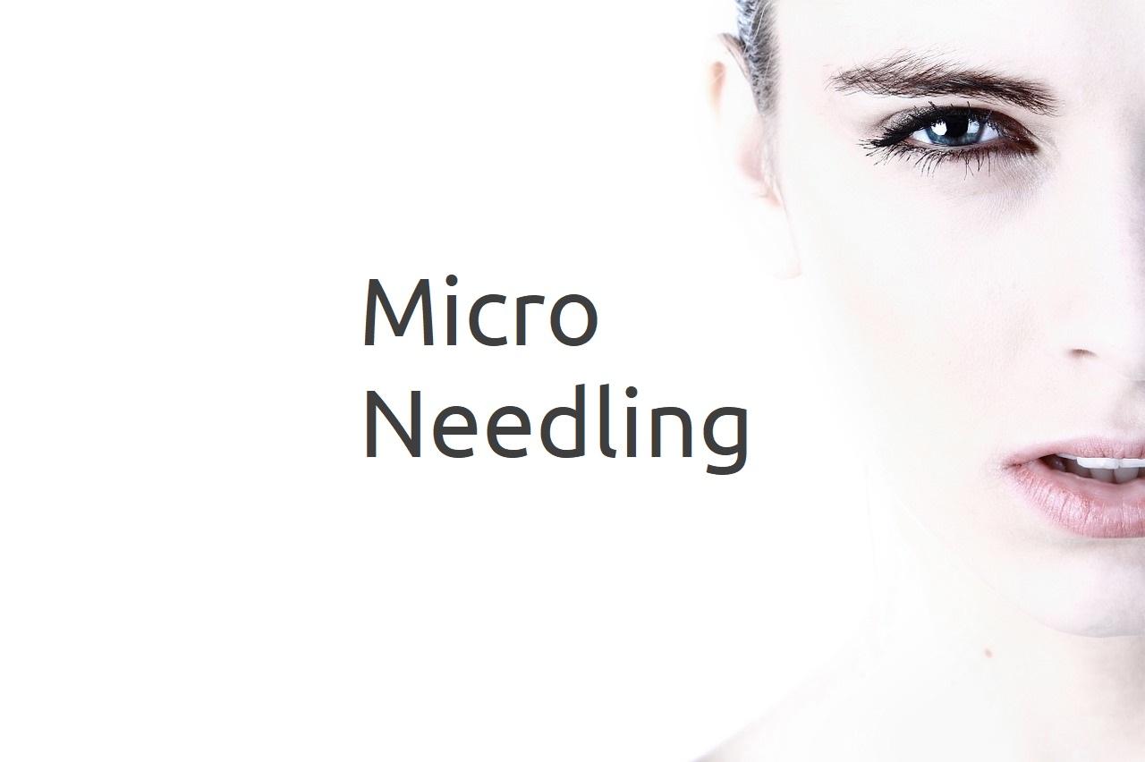 Was sind die Vorteile von Micro-Needling